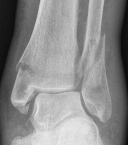 Broken-ankle-x-ray