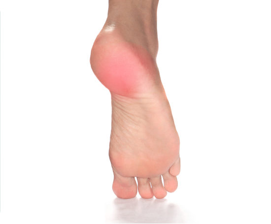 gout therapy quotes does lemon juice help gout gout causes other than diet