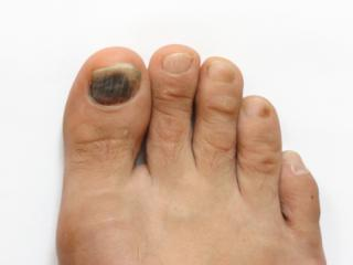 Black Or Darkened Toenails Are Essentially Bruised Nails And Can Result From A Variety Injuries Problems May Occur As Of The Toe