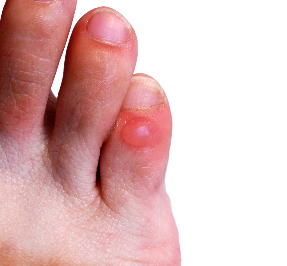 Skin Problems - Foot First Podiatry
