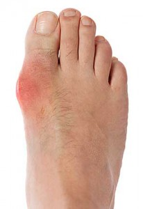 bunion-pain-pic