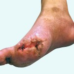diabeticfoot